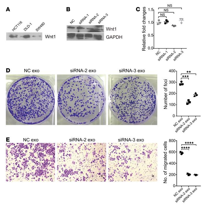 Exosomal Wnt1 enhances CRC cell proliferation and migration through nonc...