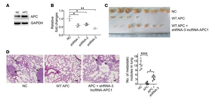 APC function is partly dependent on lncRNA-APC1. (A) APC expression in t...