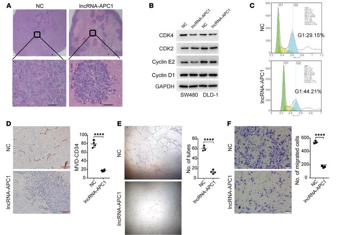 Suppression of CRC tumor growth by lncRNA-APC1 acts through the inhibiti...