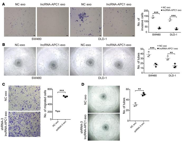 lncRNA-APC1 inhibits tumor angiogenesis through exosomes. (A) Transwell ...