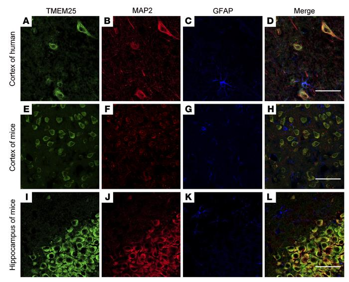 Localization of TMEM25 in nonepileptic brain tissues. (A–D) In temporal ...