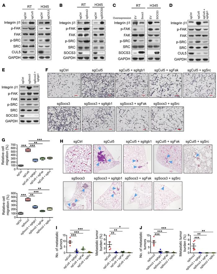 The CUL5-SOCS3 complex inhibits SCLC cell migration and metastasis by at...