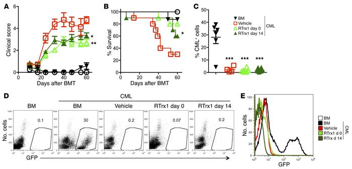 Delayed RTrx1 treatment ameliorates GVHD while preserving the GVL activi...