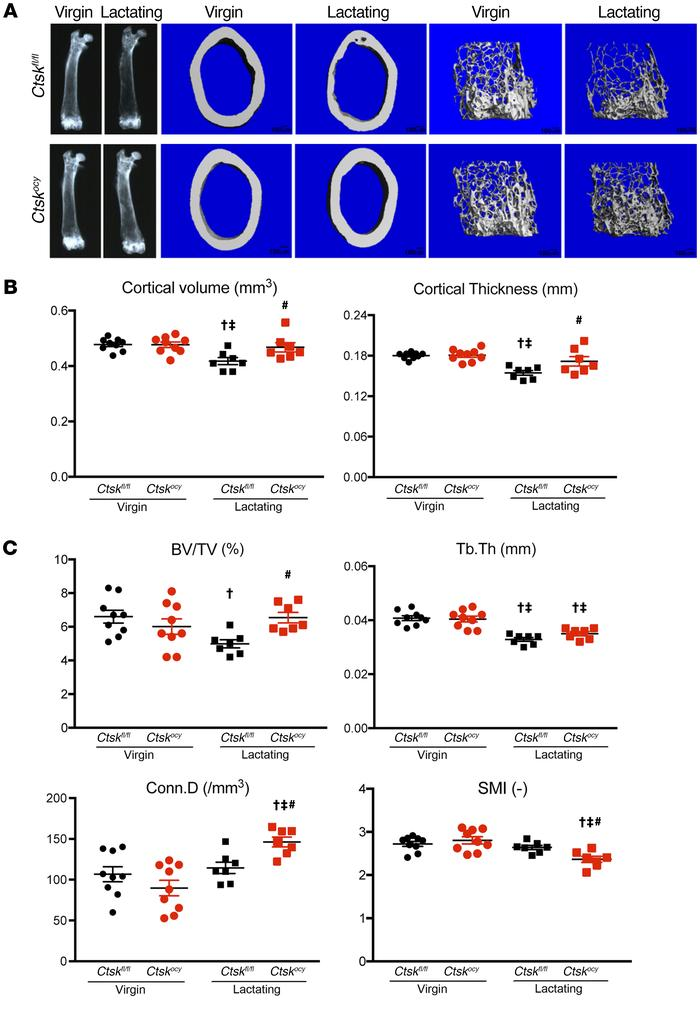 Deletion of Ctsk in osteocytes preserves cortical and cancellous bone du...