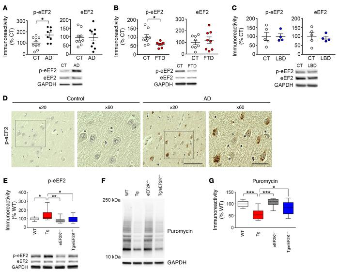 Hyperphosphorylation of eEF2 in the AD hippocampus. (A) Postmortem human...