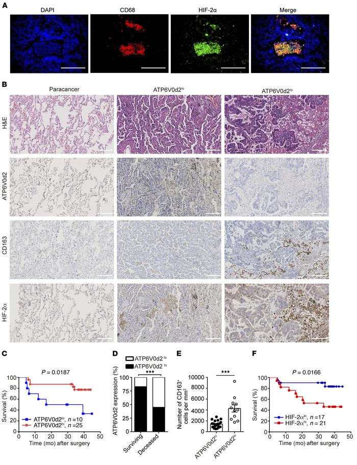 ATP6V0d2 is linked with survival for human lung adenocarcinoma patients....