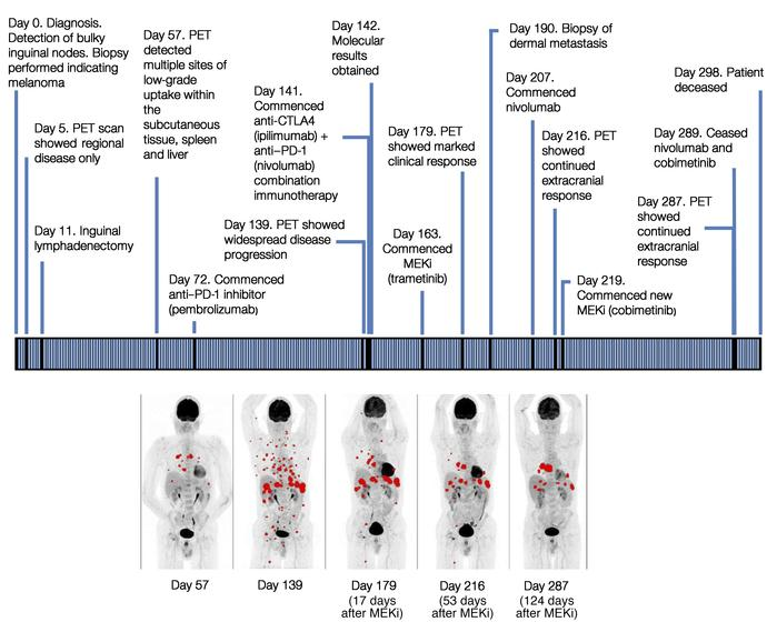 Clinical timeline for the patient, with maximum-intensity projection FDG...