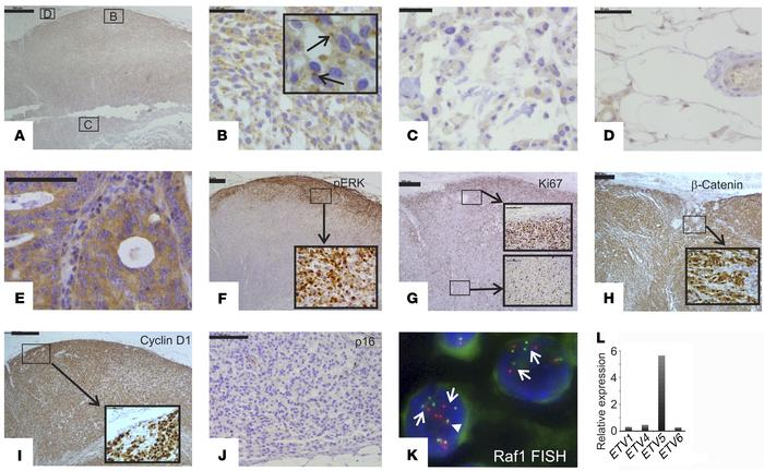 Expression of key MAPK, WNT, and cell-cycle proteins. (A–E) IHC for CRAF...