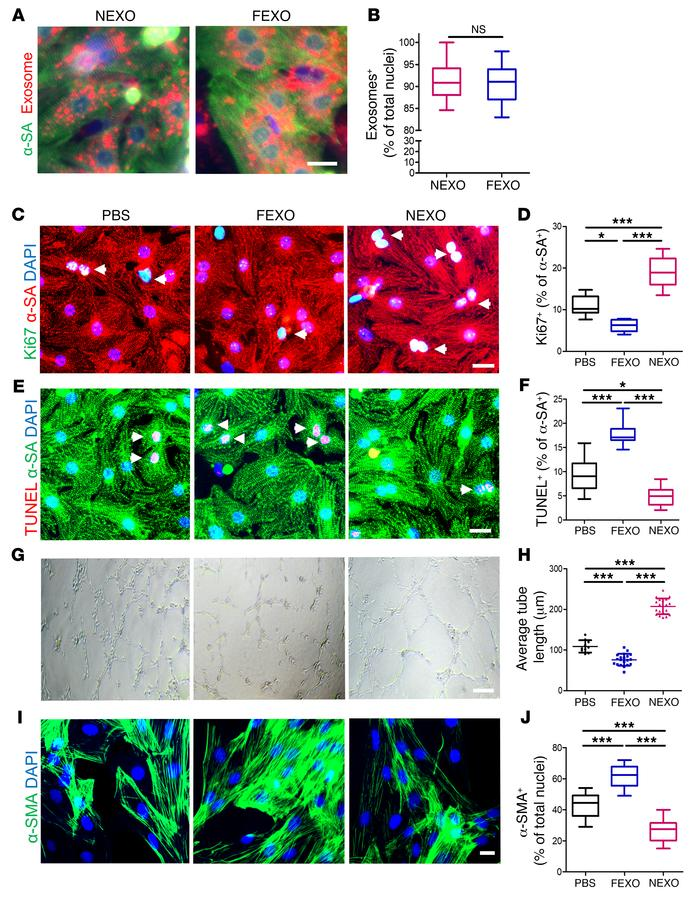 Effects of exosome treatment on cardiomyocytes, endothelial cells, and c...