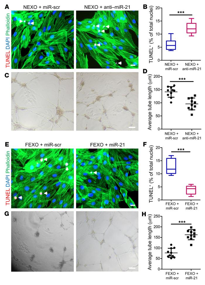 Manipulation of miR-21-5p in exosomes modulates their proangiogenic and ...