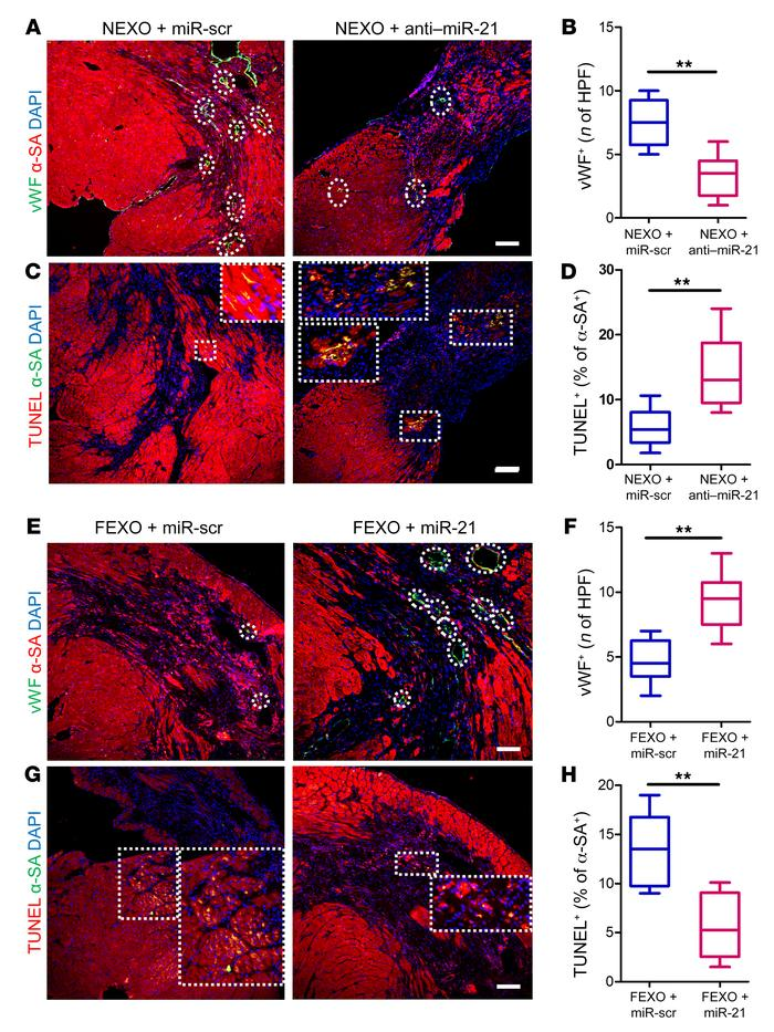 Manipulation of miR21 in exosomes modulates their proangiogenic and anti...
