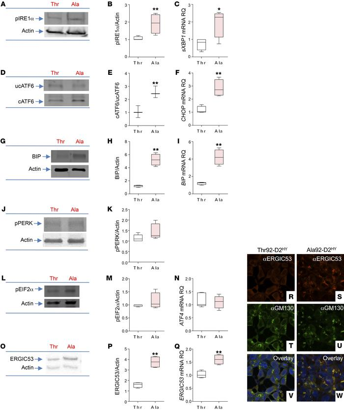 Expression of Ala92-D2 causes ER stress, triggers UPR response. UPR mark...