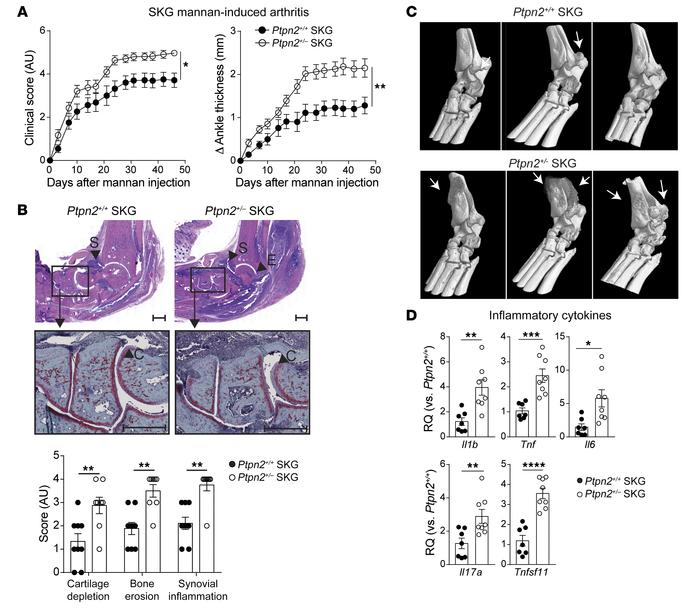 Ptpn2 haploinsufficiency aggravates mannan-induced arthritis in SKG mic...