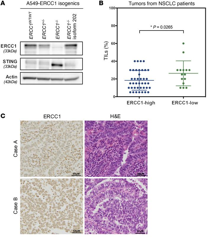 Loss of ERCC1 associates with increased STING expression in vitro and en...