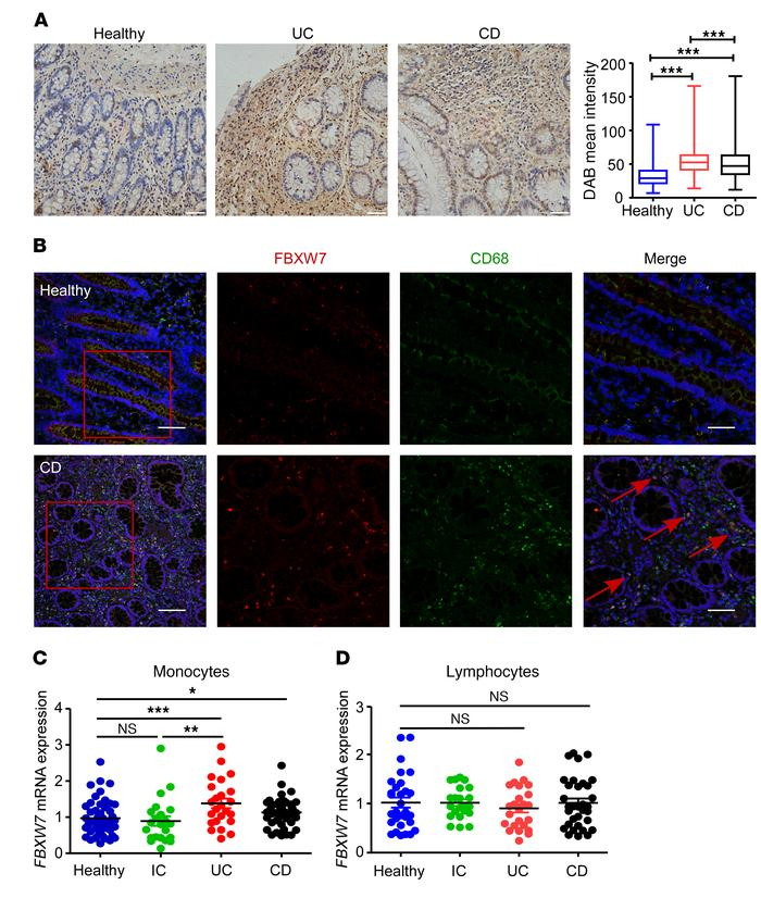 Increased FBXW7 expression in inflamed intestinal tissues in humans. (A)...