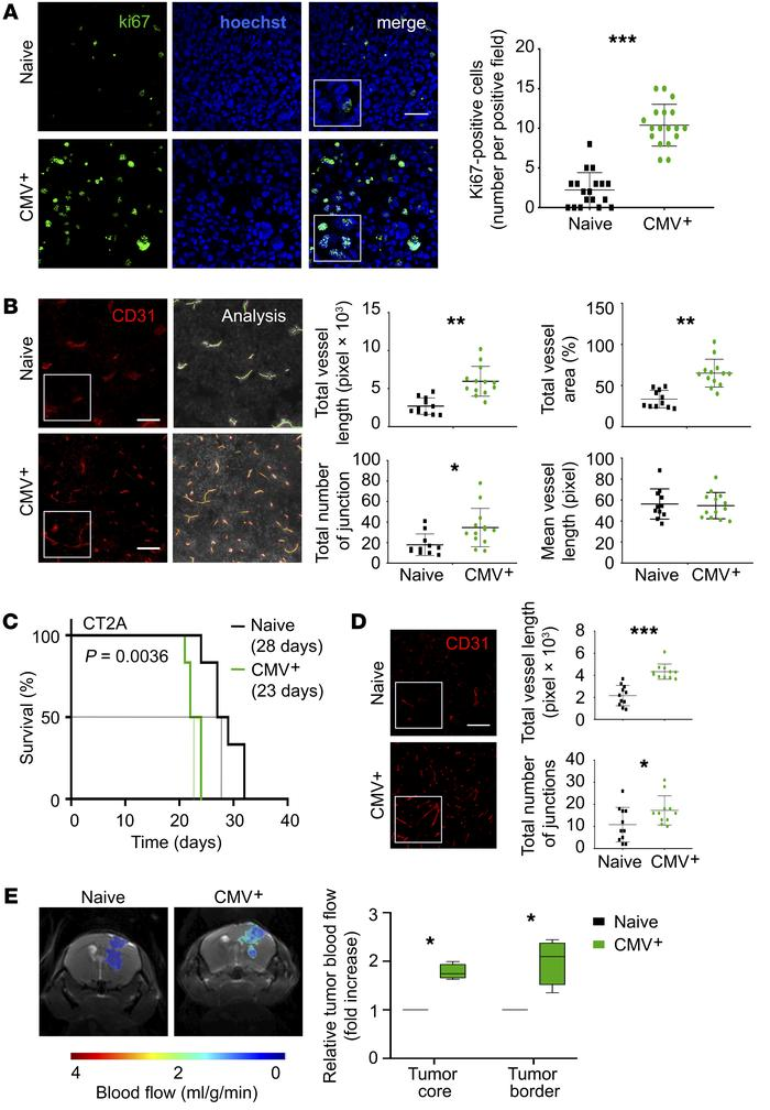 MCMV infection accelerates GBM blood vessel formation in mice. (A) Ki67 ...