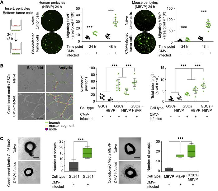 Conditioned medium from CMV-infected GBM cells increases pericyte migrat...