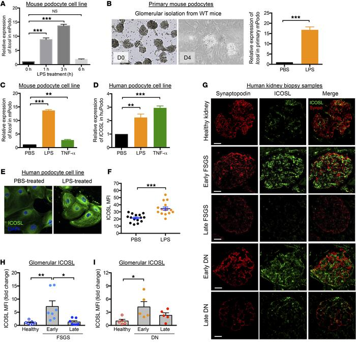 Increased ICOSL expression is an early cellular response to renal injury...