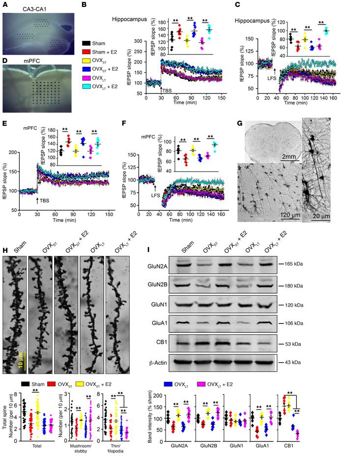 E2 failed to facilitate LTD and increase spine density in OVXLT mice. (A...