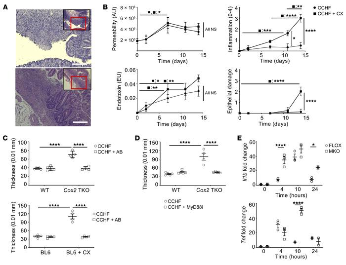 Dysregulated response to TLR-dependent signaling drives intestinal infla...