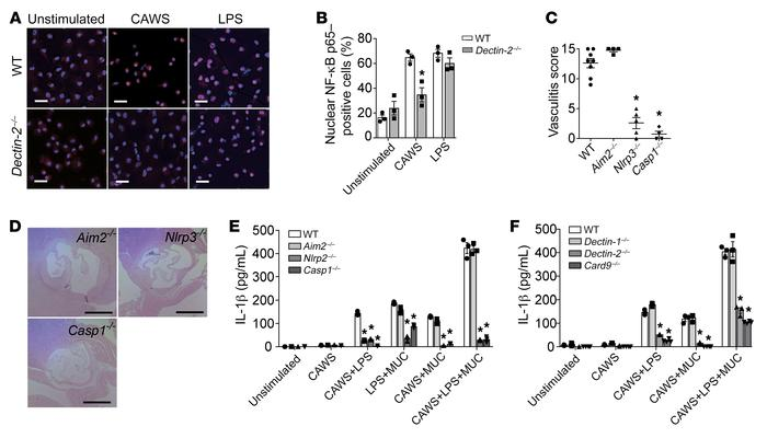 CAWS activates the NLRP3 inflammasome and promotes IL-1β production via ...