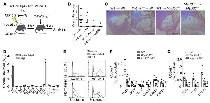 IL-1β/MyD88 signaling in heart stromal cells is required for chemokine a...