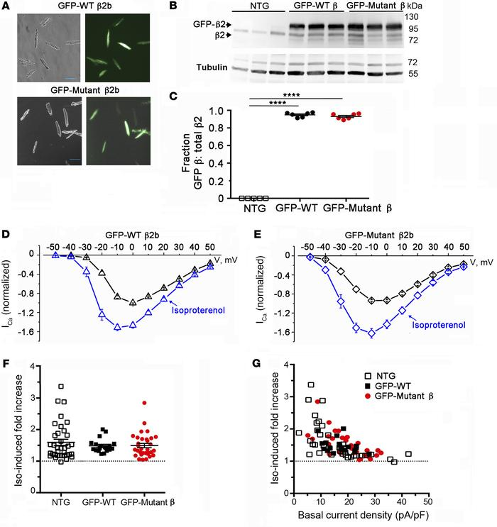 PKA phosphorylation of CaV β is not required for β-adrenergic regulation...