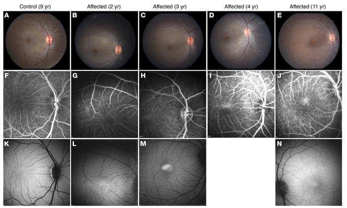 Noninvasive retinal imaging of affected visually impaired rhesus macaque...