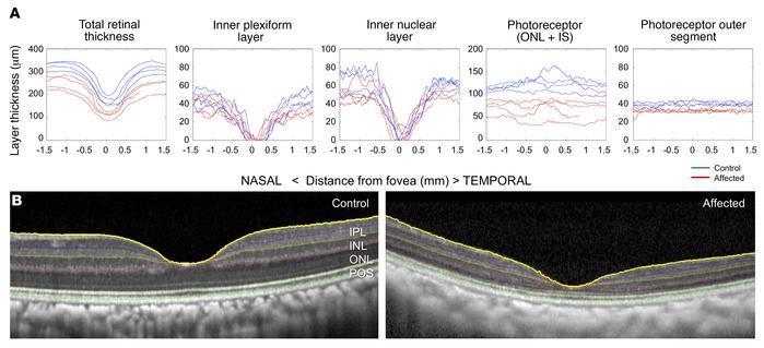 Retinal thinning in affected visually impaired animals is due to cone ph...
