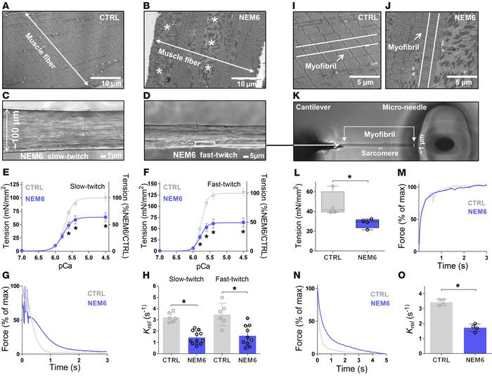 Contractility assays to study relaxation kinetics of muscle fibers and m...