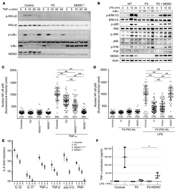 NEMO insufficiency impairs NF‑κB activation in patients' fibroblasts and...