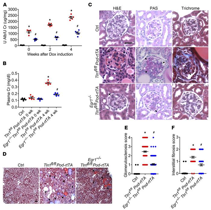 Loss of EGR1 in Tln1fl/fl Pod-rtTA TetO-Cre mice improves glomeruloscler...