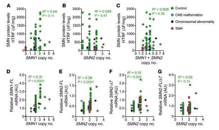 SMN1 and SMN2 copy numbers correlate poorly with SMN protein expression...