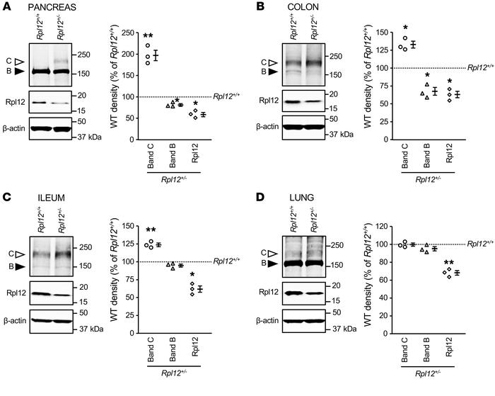 Rpl12 protein levels are reduced and WT-Cftr maturation enhanced in Rpl1...