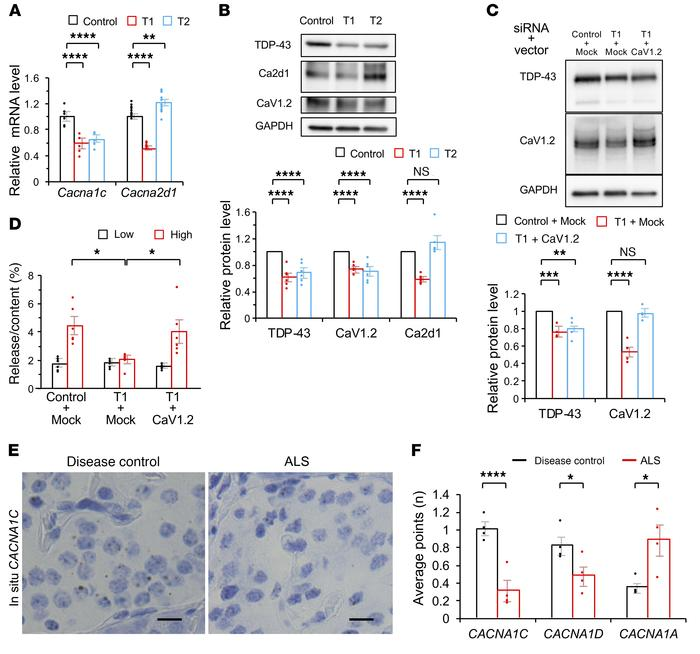 CaV1.2 downregulation mediates impairment of the first phase of insulin ...