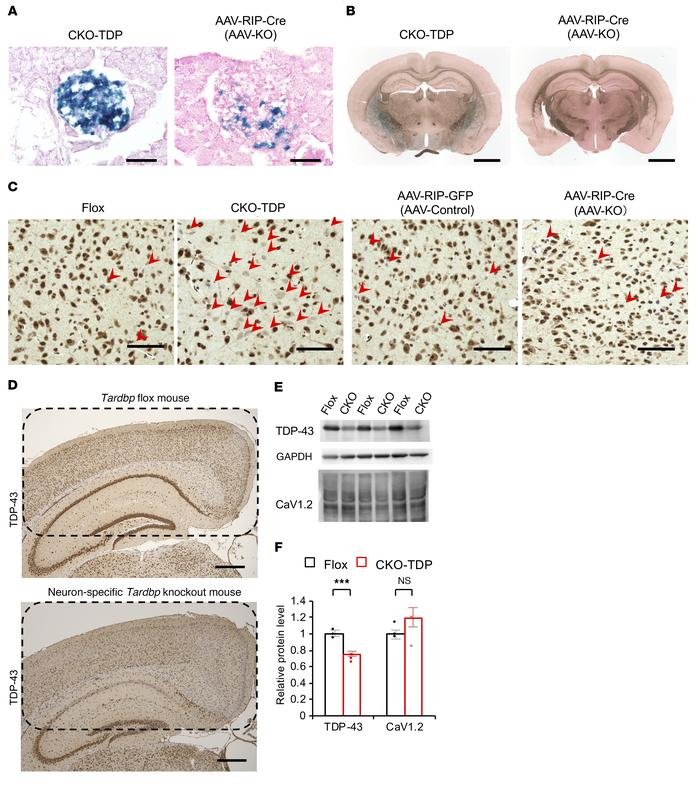 Brain expression driven by the RIP-Cre promoter in pancreatic-specific a...