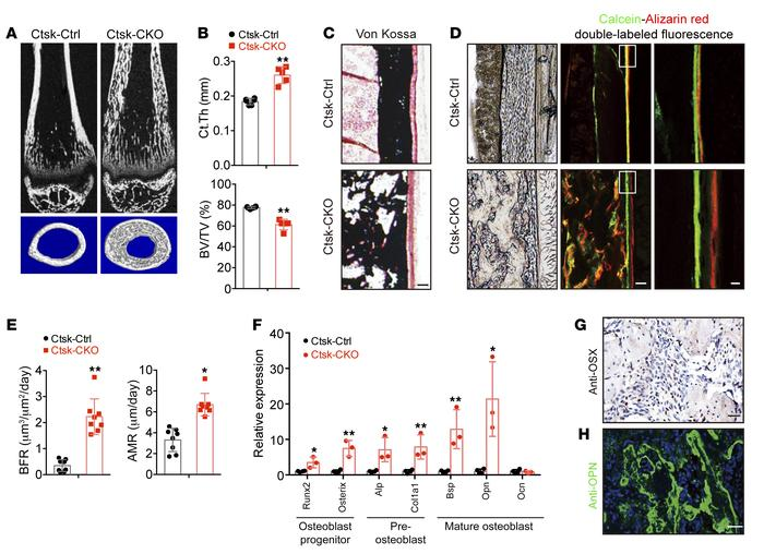 Lkb1 deletion in Ctsk-Cre–expressing cells leads to increased bone form...