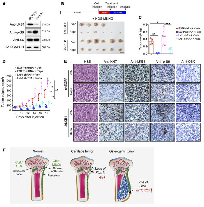 Inhibition of mTORC1 inhibits human osteosarcoma cell growth in nude mic...