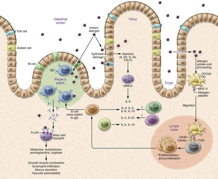 Mechanism of allergic reaction in food allergy. Allergic reaction is med...