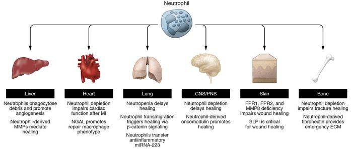 Schematic overview of studies highlighting neutrophil contributions to t...