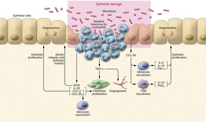 Proinflammatory stage of wound healing. Neutrophils are the first respon...