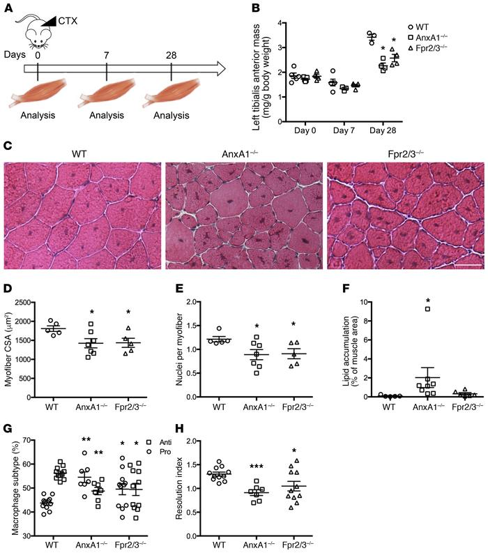 Nonredundant role of ANXA1 in cardiotoxin-induced muscle injury and repa...