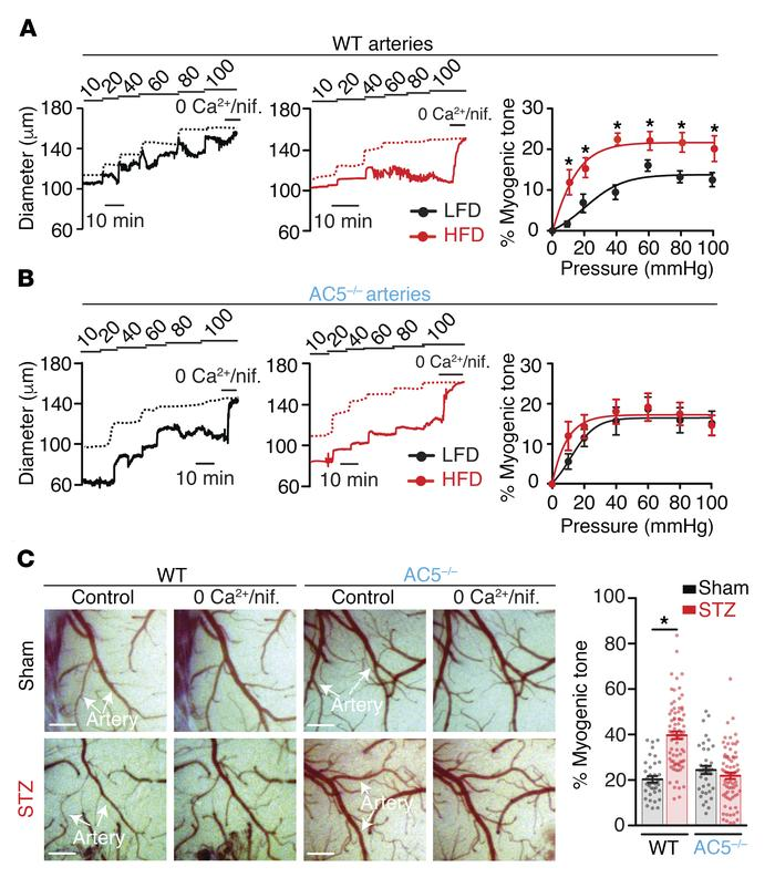 AC5 expression mediates increased myogenic tone in HFD and STZ arteries ...