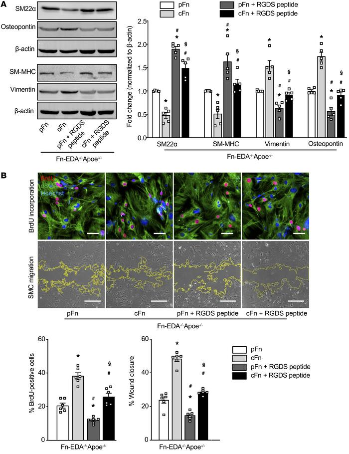 Integrin signaling partially contributes to Fn-EDA–mediated VSMC phenoty...
