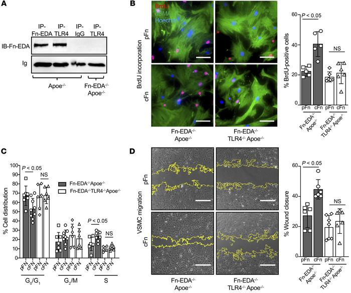 TLR4 contributes to Fn-EDA–mediated SMC proliferation and migration. (A)...
