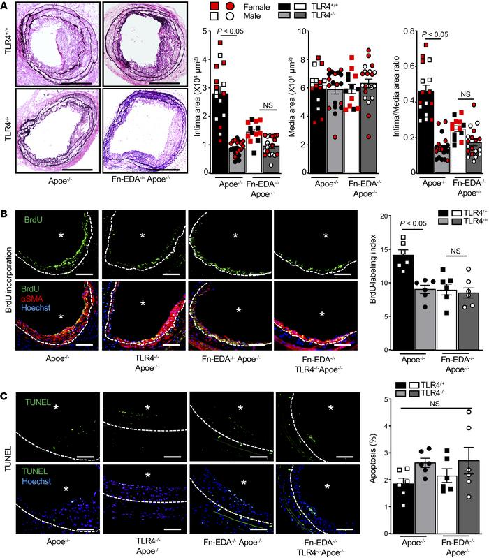 Fn-EDA promotes neointimal hyperplasia and SMC proliferation in vivo via...