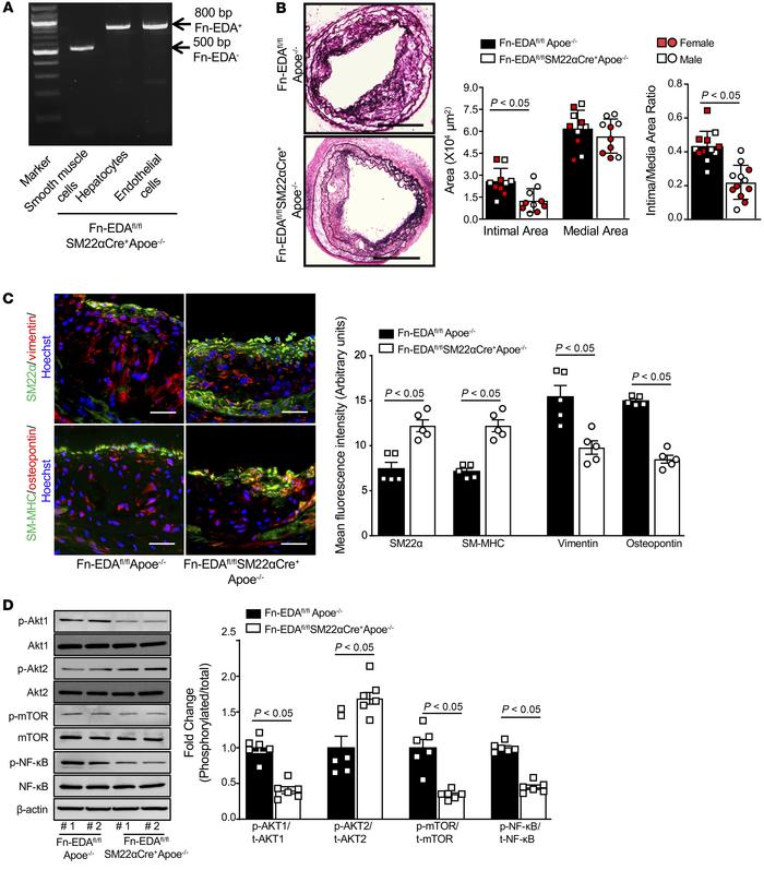 SMC-specific Fn-EDA mediates neointimal hyperplasia by promoting phenoty...