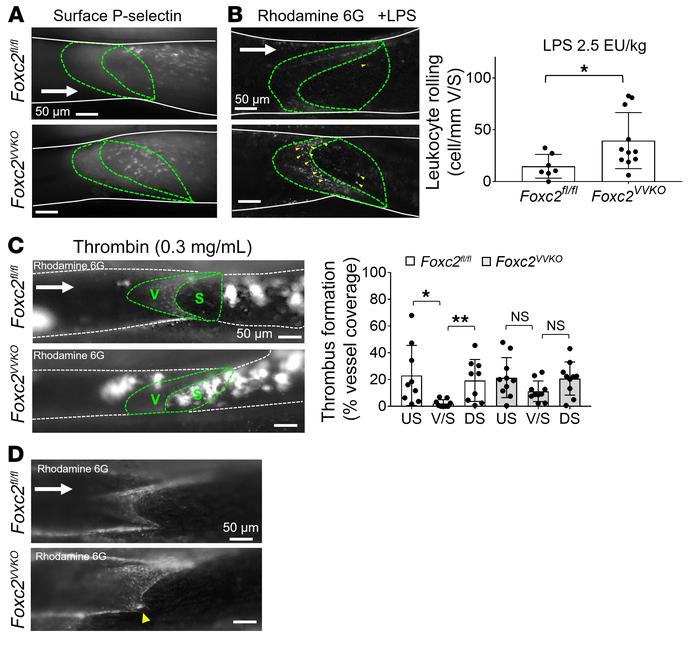 Loss of FOXC2 increases leukocyte rolling and thrombosis at the venous v...