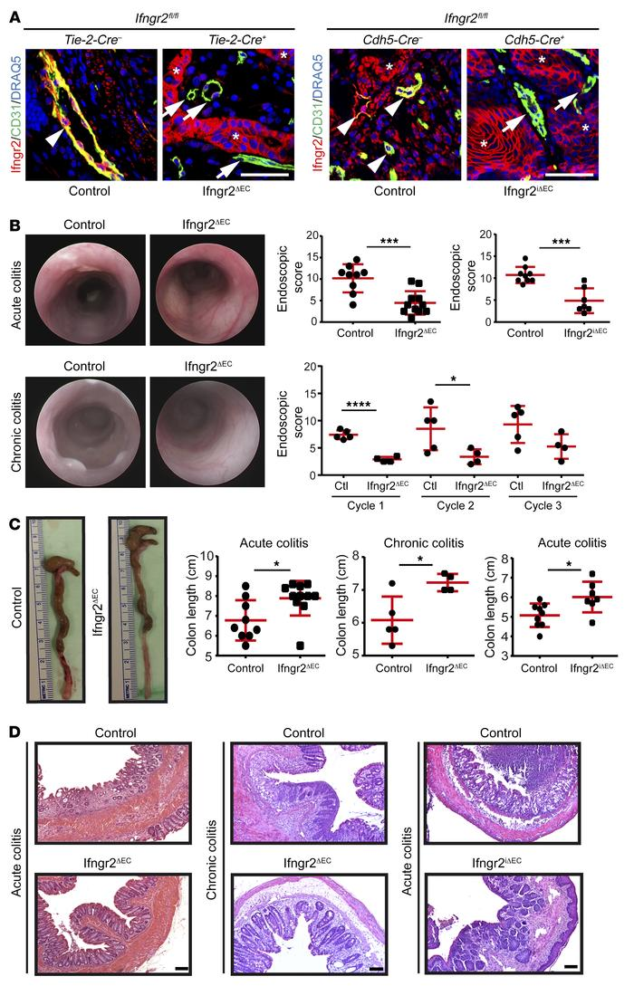 Endothelial-specific inhibition of the IFN-γ response ameliorates DSS-in...