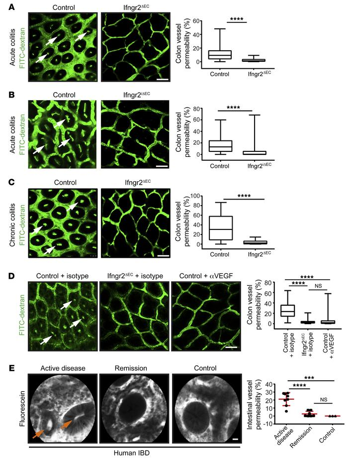 The intestinal vasculature is characterized by IFN-γ–mediated barrier dy...